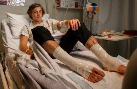 Σοβαρός τραυματισμός εφήβου από «ψείρες της θάλασσας» | tanea.gr