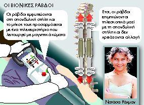 Εφτιαξαν βιονική σπονδυλική στήλη   tanea.gr