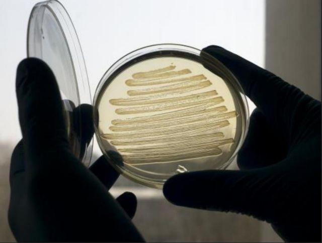 Βιοκαύσιμο από βακτήρια Ε.coli! | tanea.gr