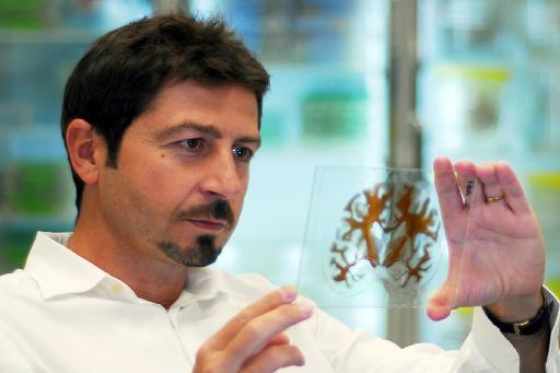 Η αφαίρεση εγκεφάλου «αποτελεσματική θεραπεία για την ανθεκτική επιληψία» | tanea.gr