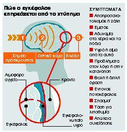 Εγκεφαλικές κακώσεις: Κάθε χτύπημα μπορεί να είναι μοιραίο | tanea.gr