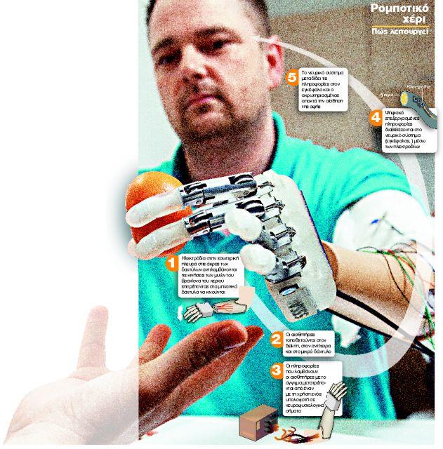 Βιονικό χέρι που αισθάνεται! | tanea.gr