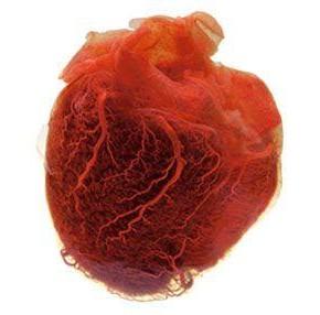 Οι καλοήθεις και κακοήθεις όγκοι της καρδιάς | tanea.gr
