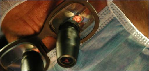 Αυξάνονται τα κρούσματα καρκίνου του πέους | tanea.gr