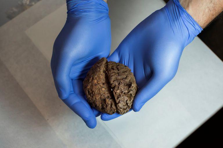 Φυσικά διατηρημένοι εγκέφαλοι ανακαλύφθηκαν σε τάφο της εποχής του Ισπανικού Εμφυλίου   tanea.gr