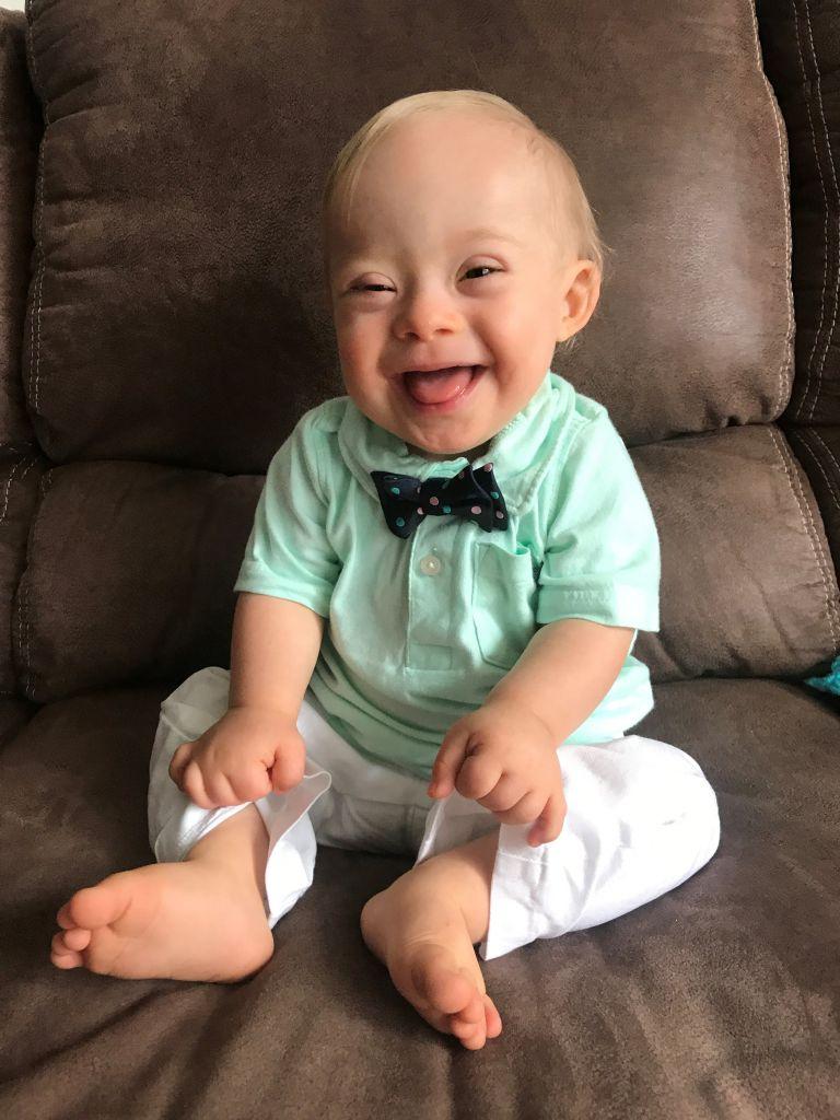 Ο Λούκας έγινε το πρώτο μωρό στην ιστορία της Gerber με Σύνδρομο Down | tanea.gr