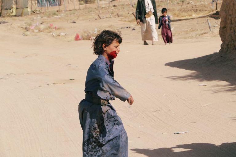 Κι άλλα παιδιά θύματα αεροπορικών επιδρομών στην Υεμένη   tanea.gr