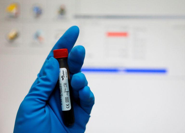Tεστ γρήγορης διάγνωσης της σήψης με μία σταγόνα αίματος | tanea.gr
