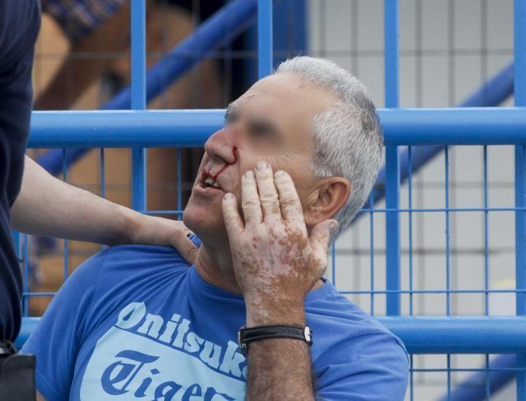 Σφοδρές συγκρούσεις οπαδών με ΜΑΤ στο Ελ Πάσο | tanea.gr