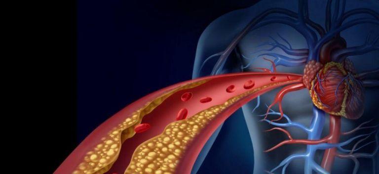 Νέα θεραπεία αναστρέφει την αθηροσκλήρωση | tanea.gr