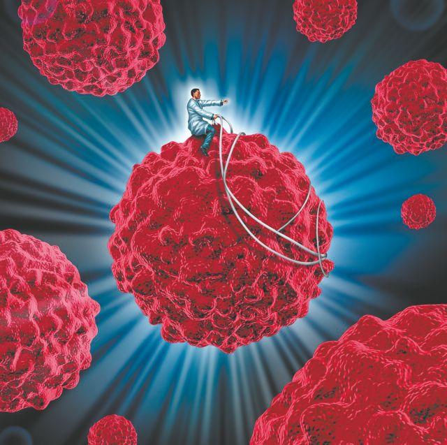 Επανάσταση έφερε η ανοσοθεραπεία στη μάχη με τον καρκίνο του πνεύμονα | tanea.gr