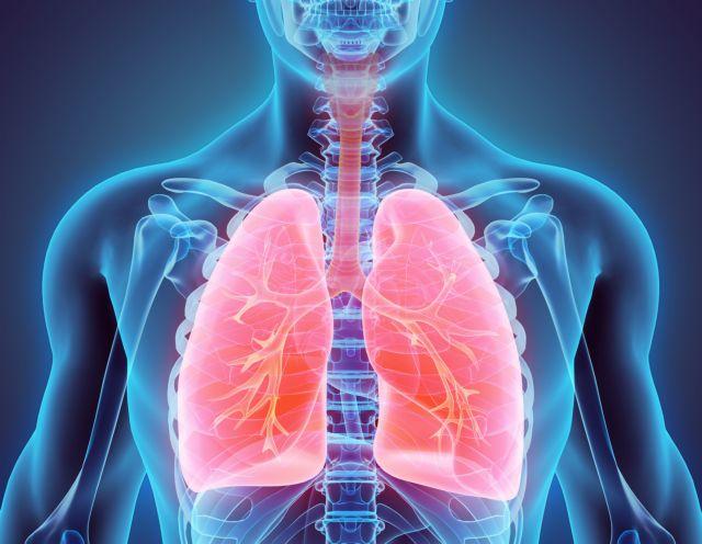 Πέθανε γυναίκα που της μεταμόσχευσαν πνεύμονες καπνίστριας | tanea.gr