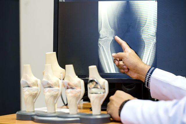 Υπερδιπλάσιος ο κίνδυνος καρκίνου από τις ακτινογραφίες για τους παχύσαρκους | tanea.gr