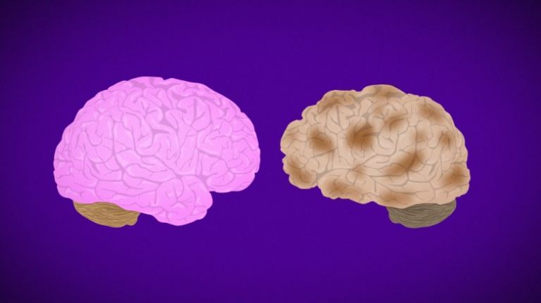 Ο γυναικείος εγκέφαλος φαίνεται νεότερος από ό,τι των ανδρών της ίδιας ηλικίας | tanea.gr