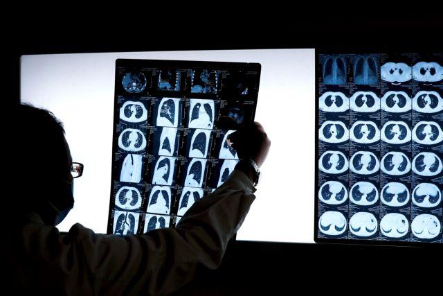 Νέο σύστημα τεχνητής νοημοσύνης στη μάχη για τη διάγνωση του καρκίνου του προστάτη | tanea.gr