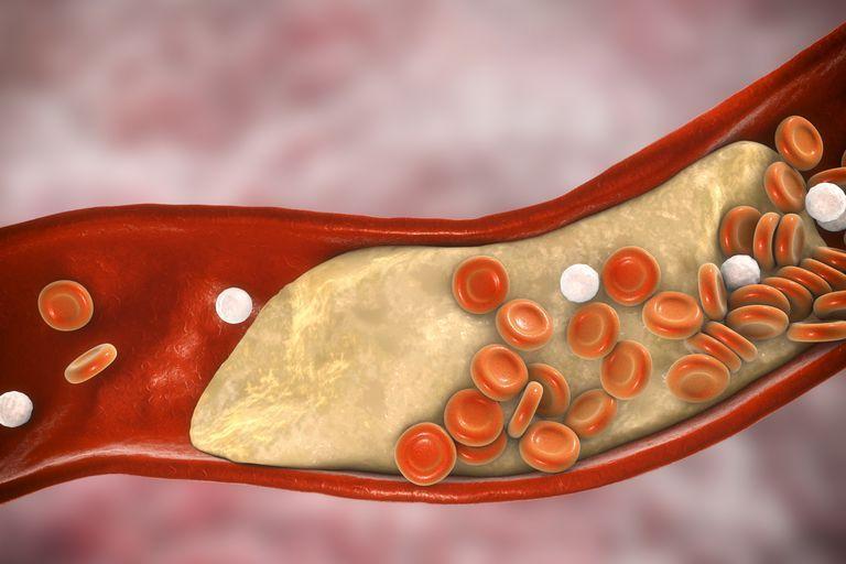 Μειώστε τη χοληστερίνη με αυτόν τον ξηρό καρπό | tanea.gr