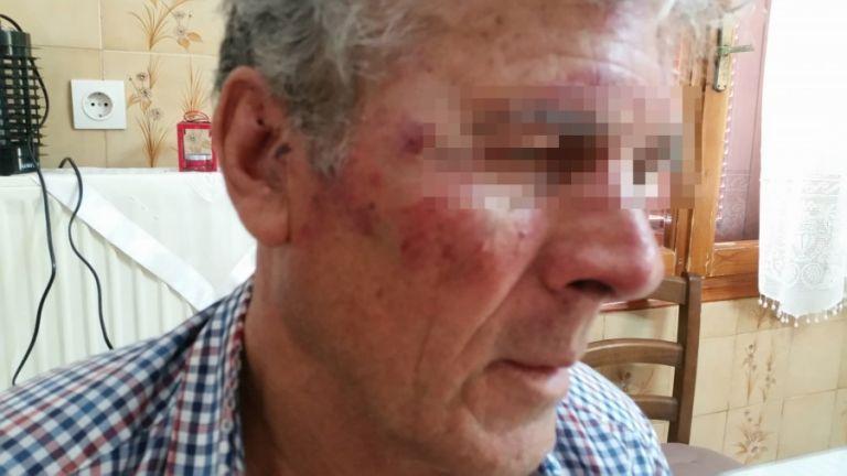 Ηλικιωμένος δέχθηκε επίθεση από Τούρκους | tanea.gr