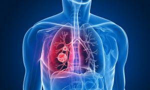 Μύθος το «ερασιτεχνικό» κάπνισμα : Λιγότερα από 5 τσιγάρα καθημερινά προκαλούν βλάβη στους πνεύμονες