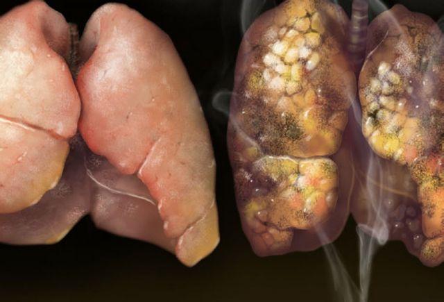 Οι πνεύμονες καπνιστή που κάπνιζε ένα πακέτο καθημερινά επί 30 χρόνια | tanea.gr