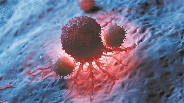 Χειρουργοί ογκολόγοι: Το 1/3 των καρκίνων θα μπορούσε να προληφθεί με την σωστή ενημέρωση του κοινού | tanea.gr