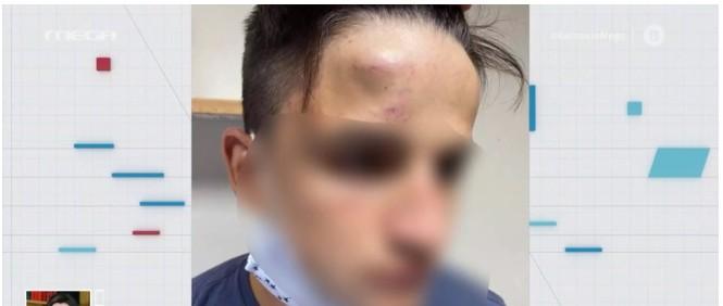 Συμμορία ανηλίκων ξυλοκόπησε άγρια 17χρονο στο Γαλάτσι – Τι λέει η οικογένειά του στο MEGA | tanea.gr
