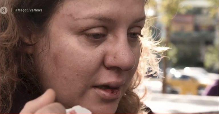 Συγκλονίζει η δικηγόρος που άφησαν αιμόφυρτη στο δρόμο οι χρυσαυγίτες   tanea.gr