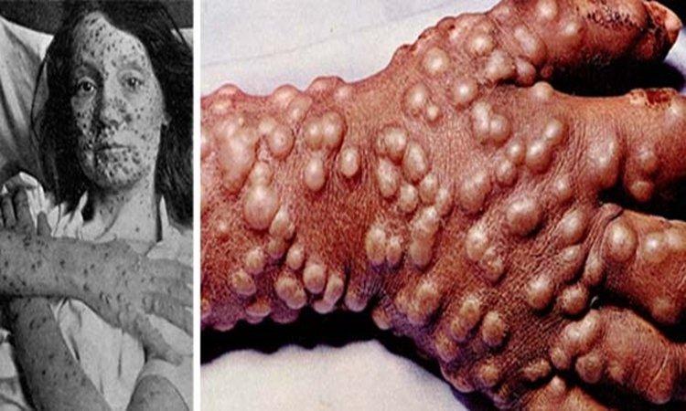 Γιατί είναι απαραίτητος ο καθολικός εμβολιασμός για τον κοροναϊό  – Το παράδειγμα της ευλογιάς | tanea.gr