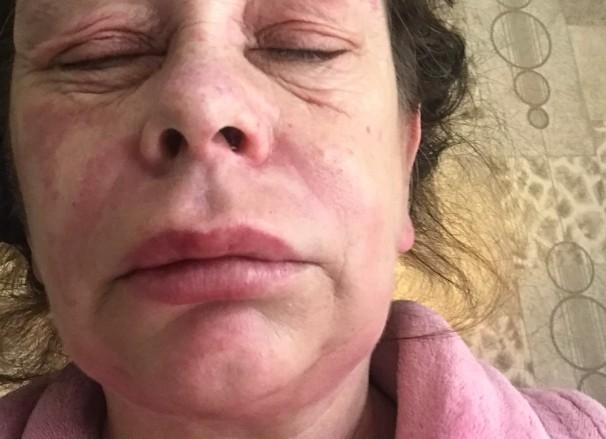 Γυναίκα που έκανε το εμβόλιο της AstraZeneca καταγγέλλει: «Μεταμορφώθηκα σε εξωγήινο τέρας» | tanea.gr