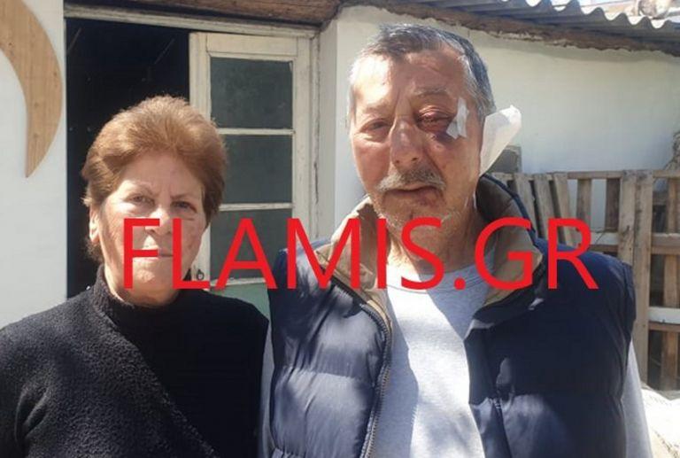 Λήστεψαν και βασάνισαν ζευγάρι στην Αιγιαλεία – Η γυναίκα αναγνώρισε δύο από τους δράστες | tanea.gr